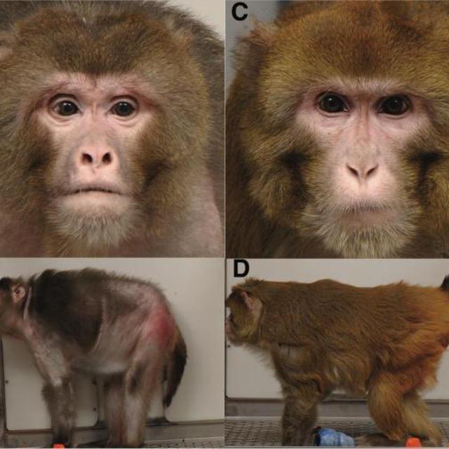 長寿遺伝子SIRT1をオンにする食とサプリは