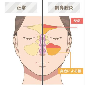 副鼻腔炎の改善