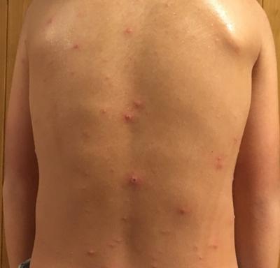 水疱瘡でした。 KSメルト 乳酸菌生産物質